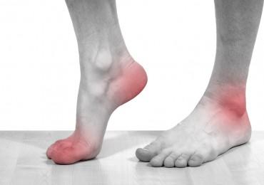 Sintomas e tratamento de gota