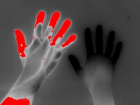 Fenômeno de Raynaud: Causas, sintomas e tratamento do fenômeno de Raynaud