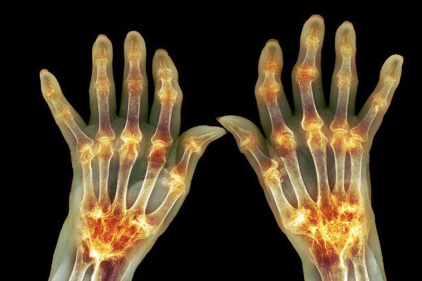 Quais as causas, diagnostico e tratamentos da artrite?