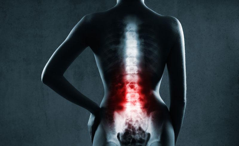 Espondilite: Saiba os sintomas e tratamento