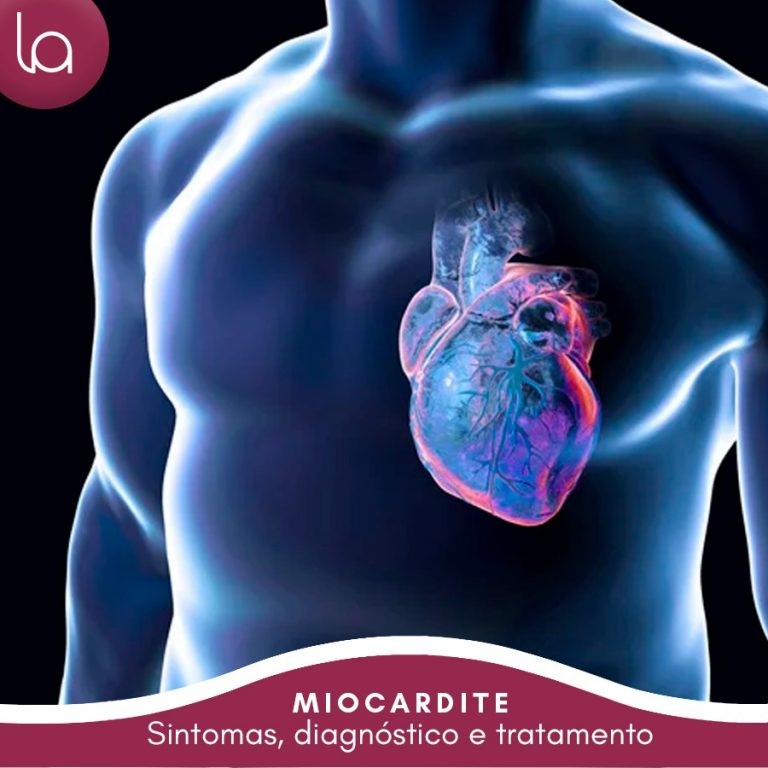 miocardite-sintomas-causas-tratamento-curitiba-loyola-e-avellar-clinica-medica