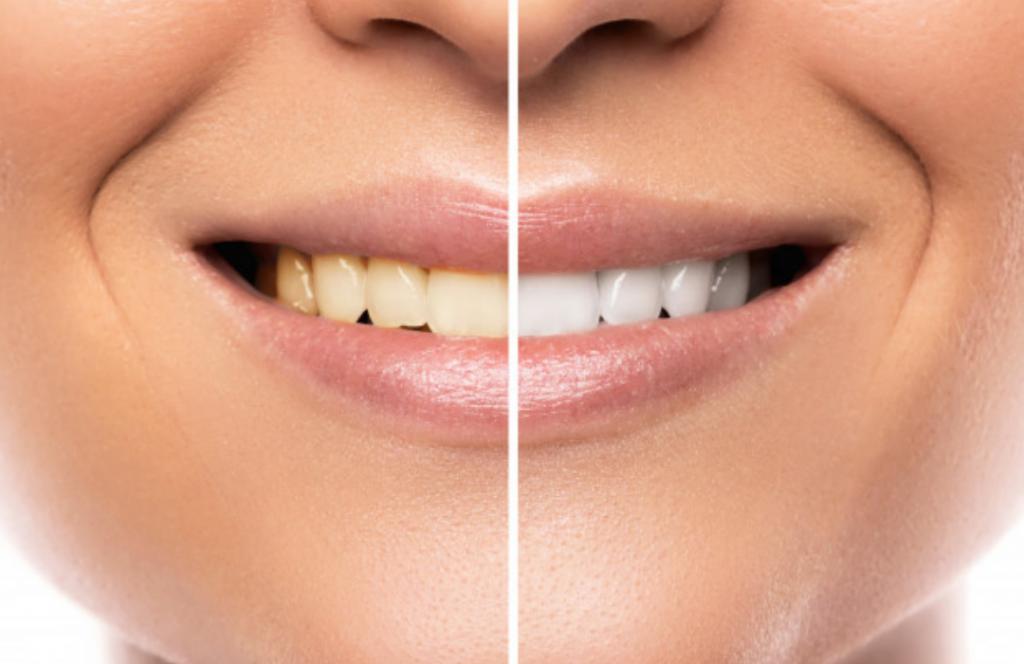clareamento-dental-loyola-e-avellar-curitiba